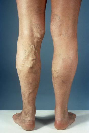Varicose Veins Laser Treatment