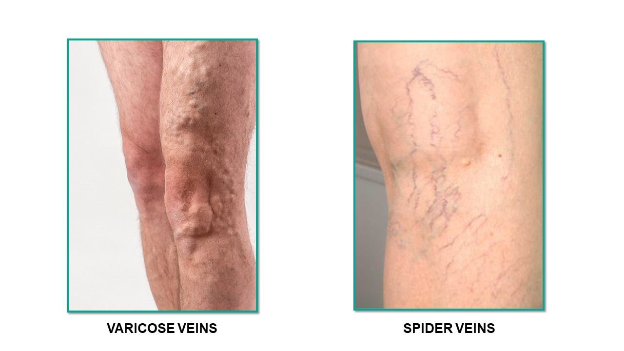 Varicose Veins Vs Spider Veins