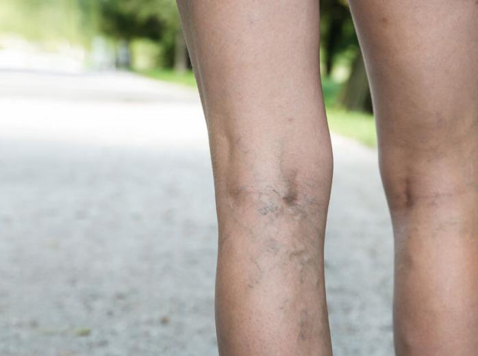 Spider Veins Treatment - Avis Hospitals