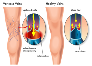 Varicose veins - Symptoms and causes