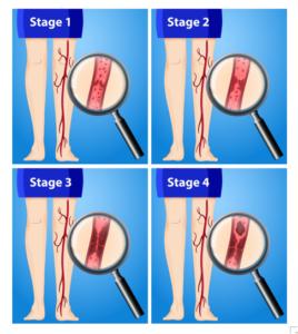 DVT Stages