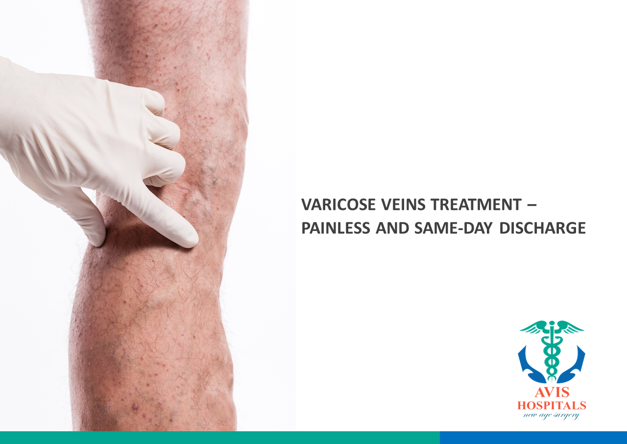 Varicose Veins Treatment – Painless and Same-Day Discharge