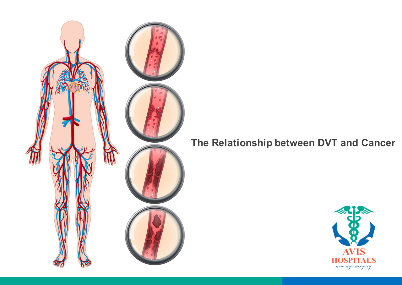 The Relationship between DVT and Cancer
