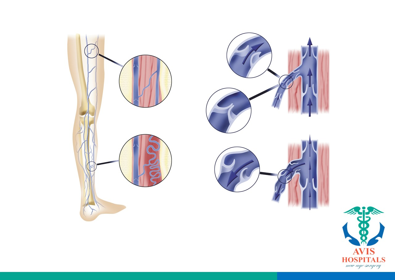 Types of Venous Disorders