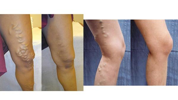 Varicose Veins Treatment Procedures