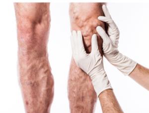 Varicose Veins Leg
