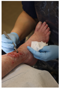 Leg Ulcer Treatment