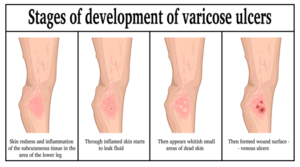 Stages of Varicose Ulcers in legs