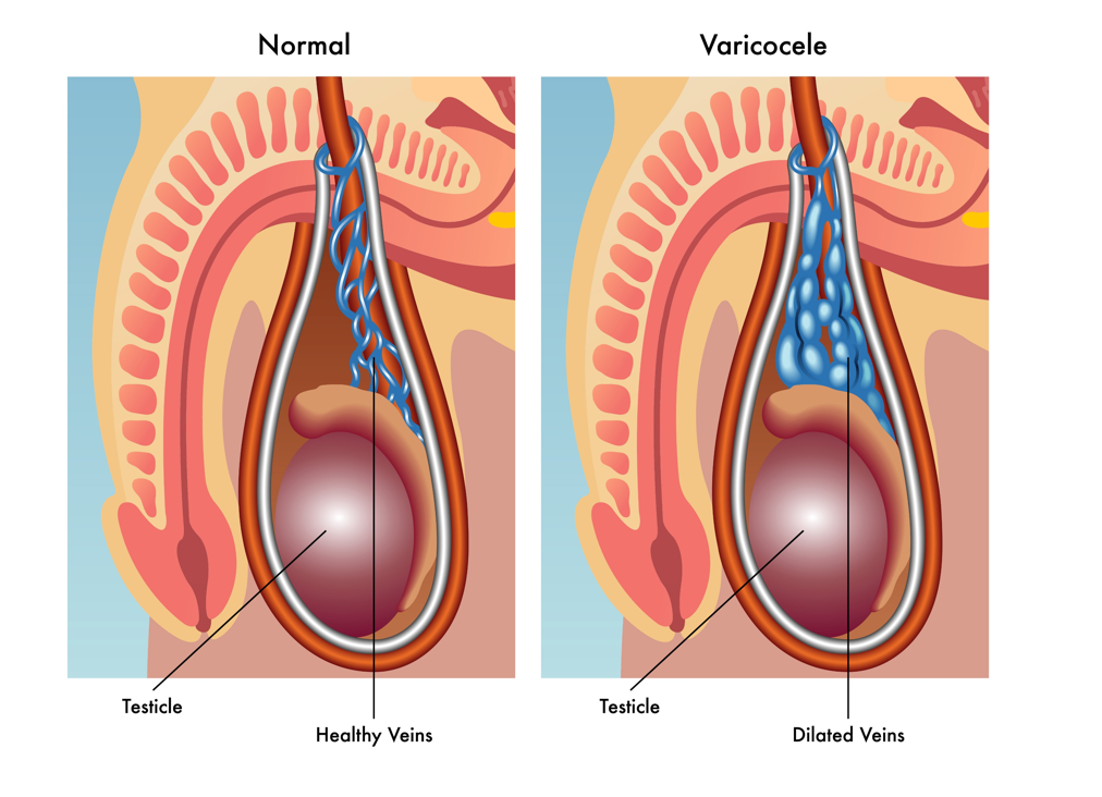 varicocele treatment in hyderabad