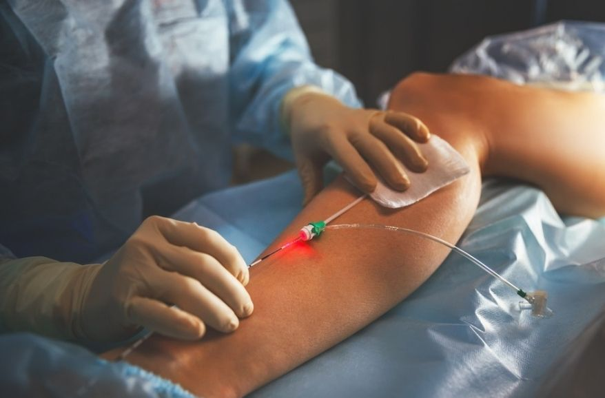 Surgery for Varicose Veins