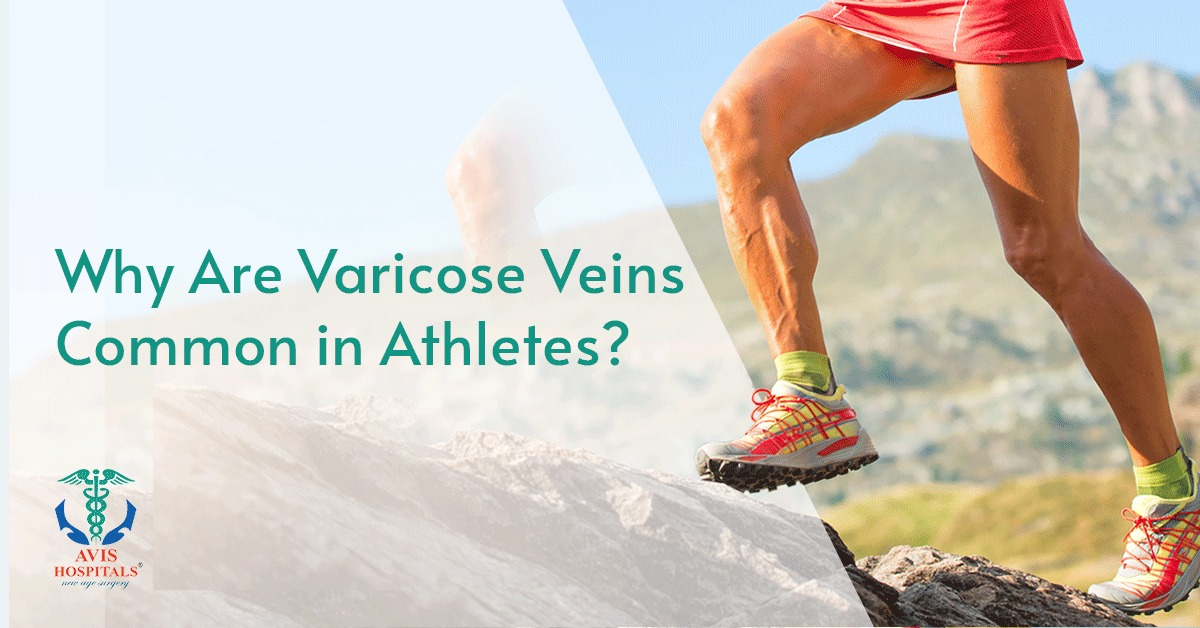 Why Are Varicose Veins Common in Athletes