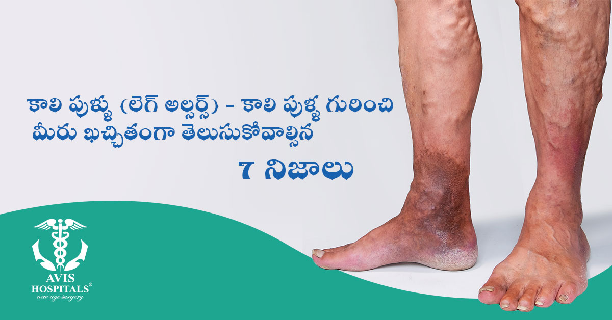 Leg Ulcers - 7 Facts You Must Know About Leg Ulcers