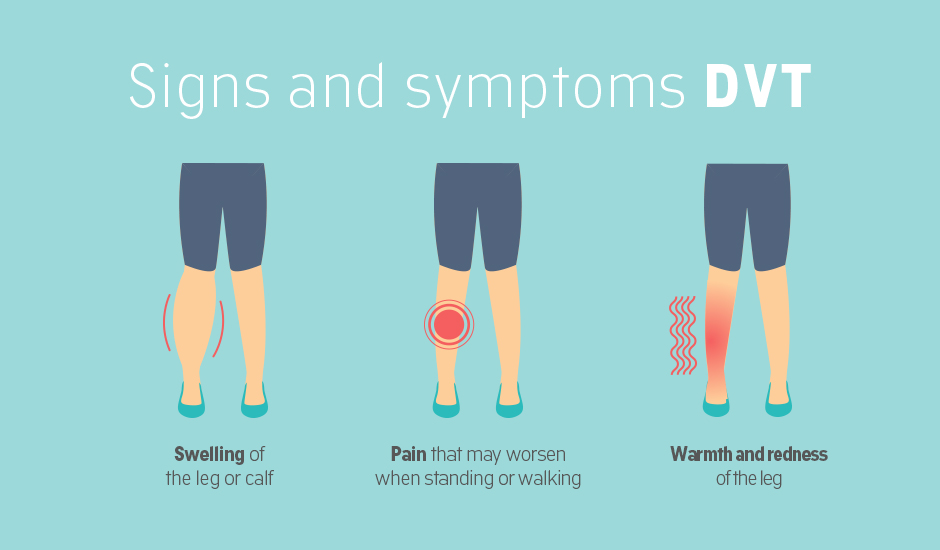 DVT Signs and symptoms