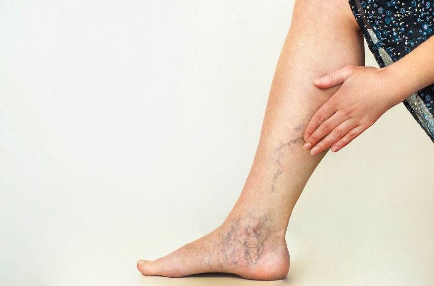 Can your Varicose veins rupture?