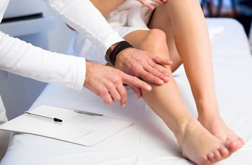 varicose veins diagnosis