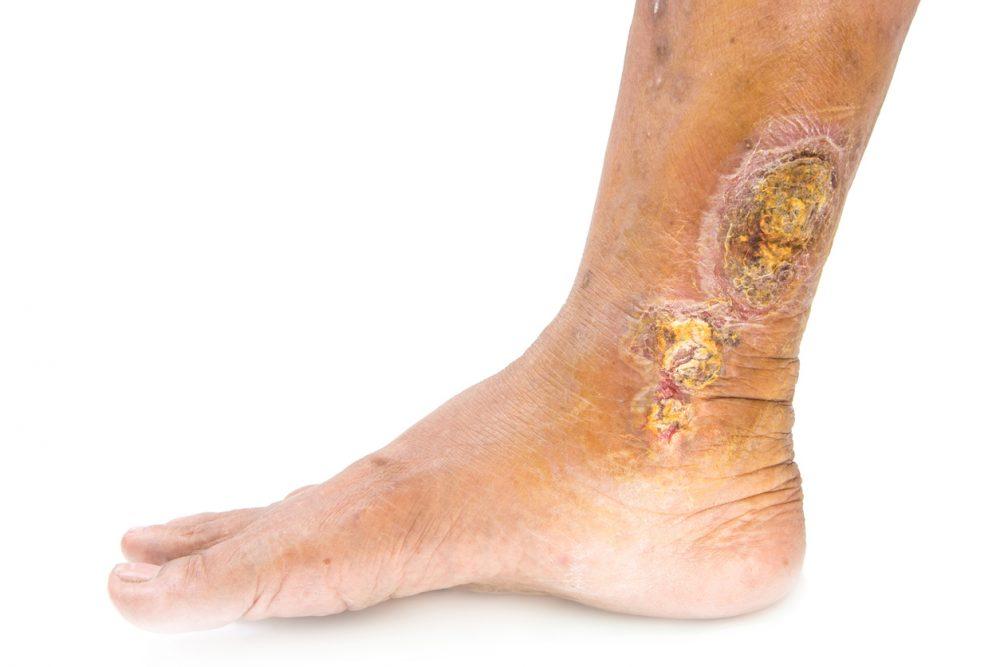 Venous Ulcers