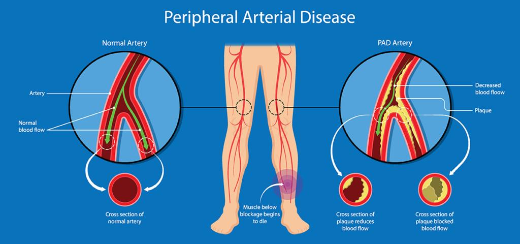 Peripheral Artery Disease treatment