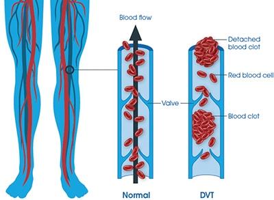 DVT deep vein Thrombosis.